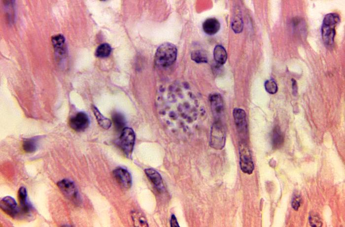 Trypanosoma.cruzi.bradyzoites.parasites, heart tissue