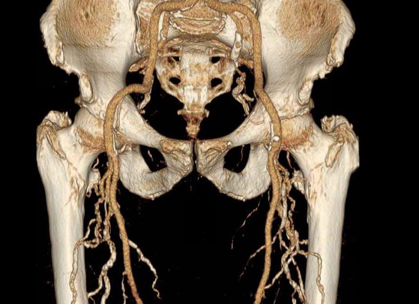 3D Angiogram of Lower vasculature system