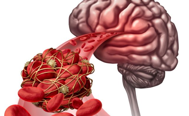 brain stroke blood clot