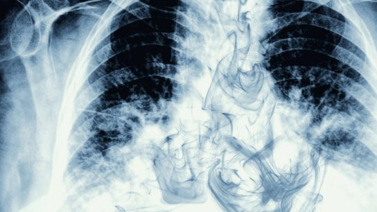 Chest X ray, smoking