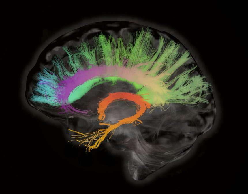 Cognitive function of the brain