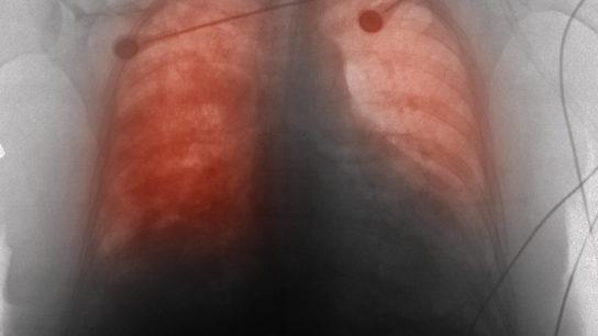 heart failure, cardiomyopathy