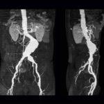 CT Angiography