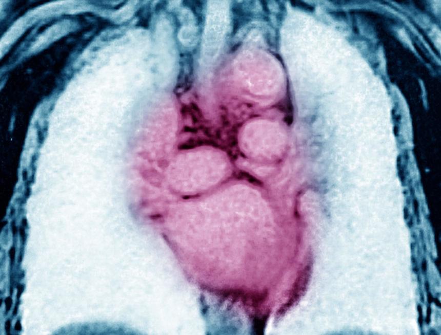 cardiovascular disease, CVD, heart disease, MRI