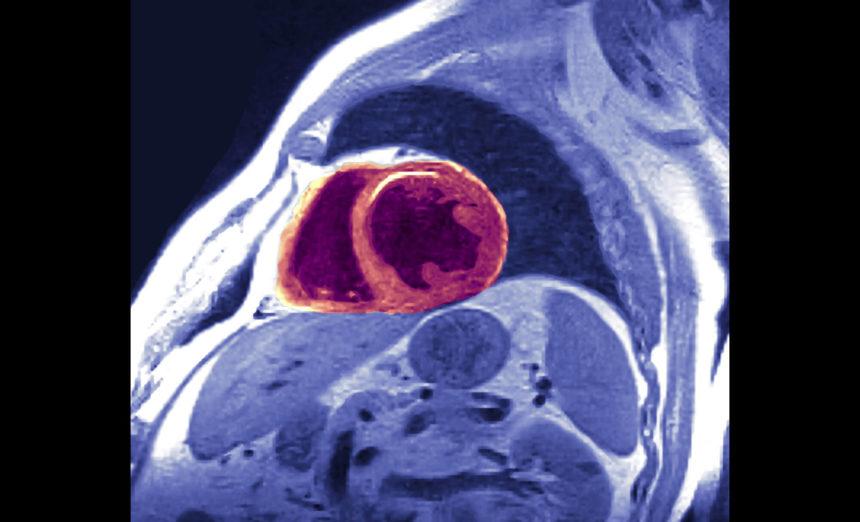 MRI, heart, myocardial infarction, hypertrophy