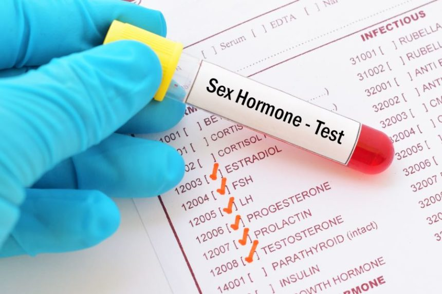 Sex hormones test