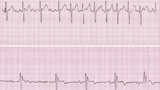 atrial fibrillation, afib, cardioversion