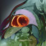 cardiac mri, cardiovascular disease, Cvd, ACS