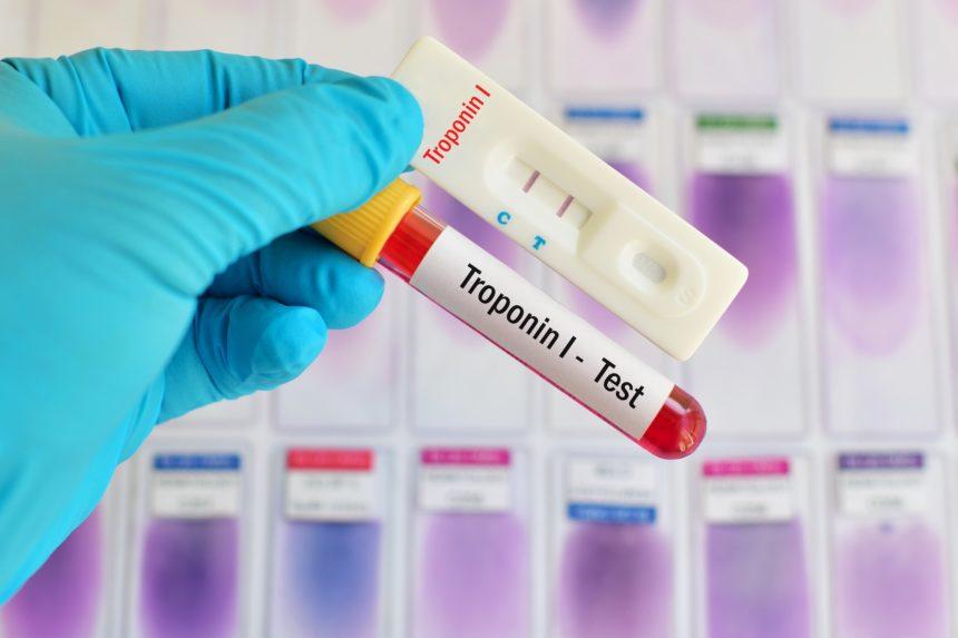 troponin blood test