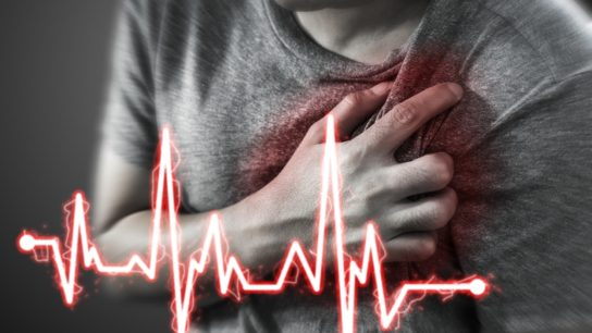 heart attack, myocardial infarction ACS