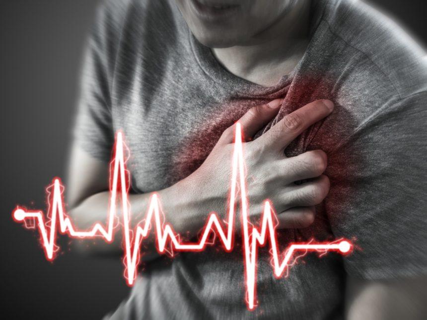 heart attack, myocardial infarction ACS