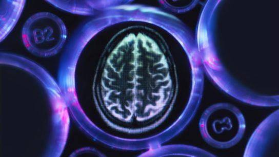 brain scan, alzheimers, dementia