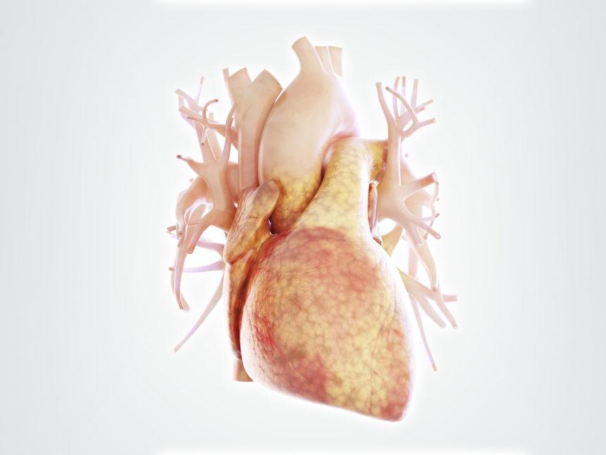 fatty heart