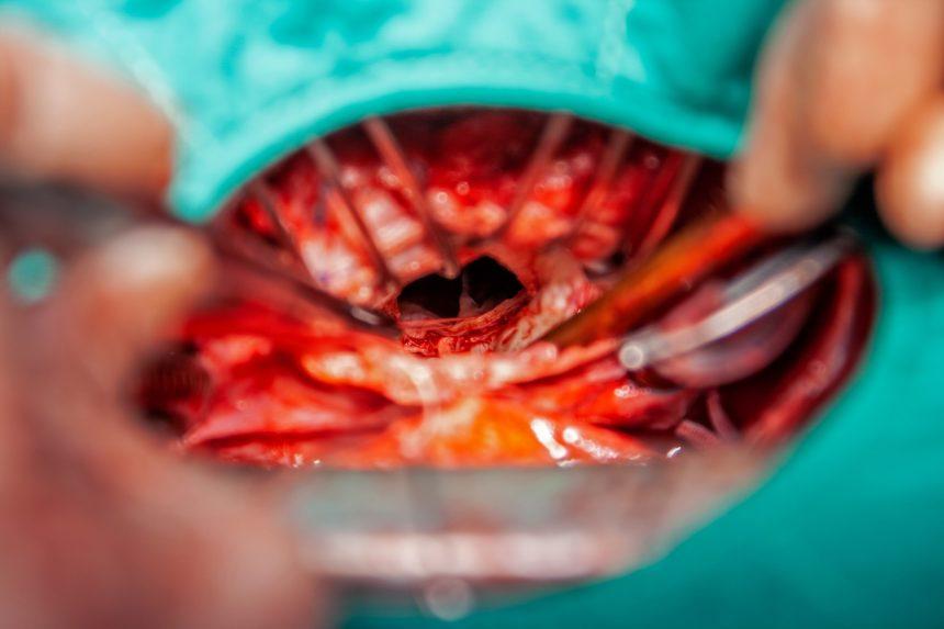 mitral valve surgery