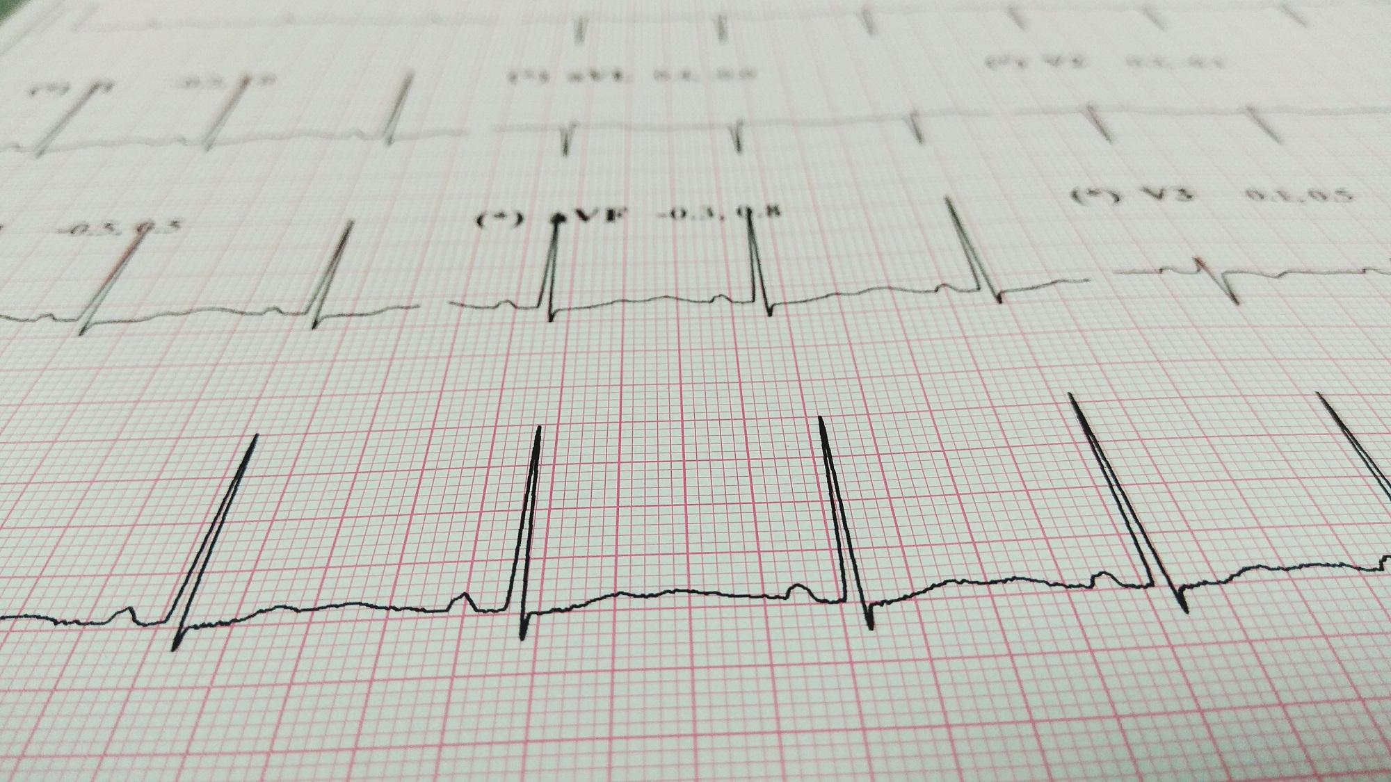 Adjusted Endocardial Voltage Cut-Offs Proposed for