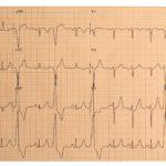 Arrhythmia, PVC, premature ventricular complex, EKG, ECG