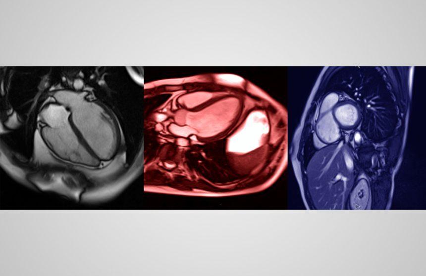 MRI of human heart