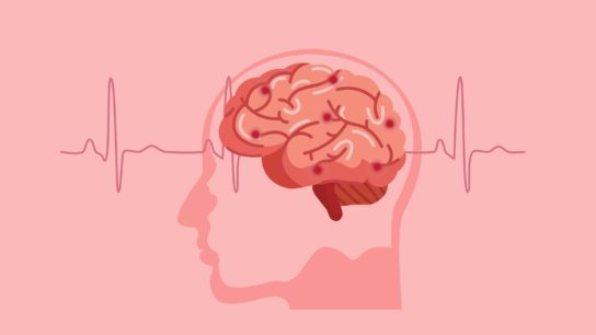 Graphic of brain with EKG in background