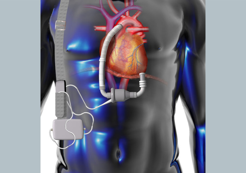 Illustration of a left ventricular assist device