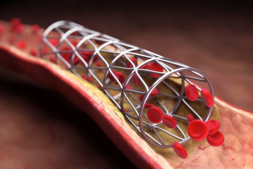 coronary stent or angioplasty