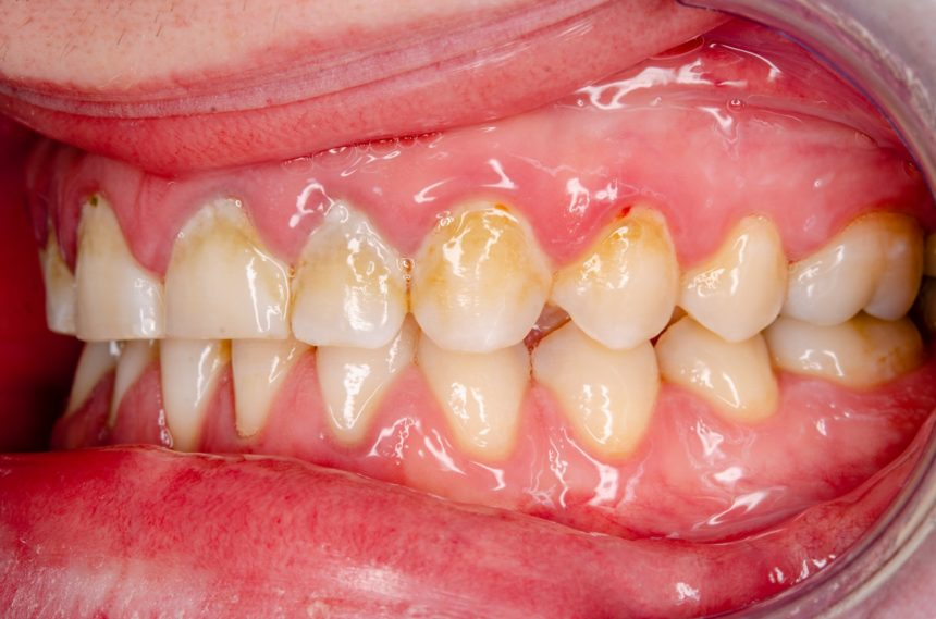 teeth with plaque, gingivitis