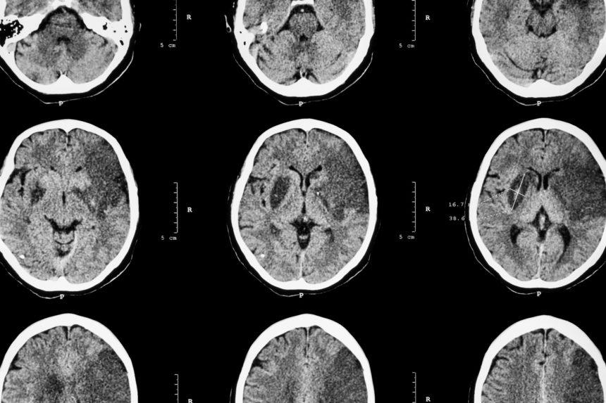 Ischemic stroke scan