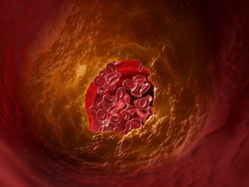 blocked artery illustration