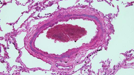 Pulmonary Arterial Hypertension_SS_BY6300