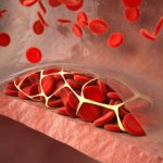 Hematology Advisor spoke with experts about the new ASH clinical practice guidelines for VTE.