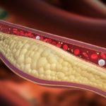 ASCVD CHD Risk Familial Hypercholesterolemia